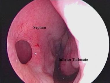Endoscopic view of a septal perforation from the l