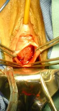 Dissection of anterior vaginal wall.