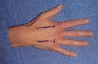 Locations for dorsal incisions over second and fou