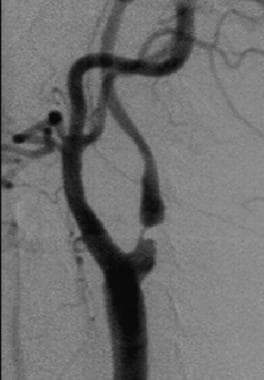 Digital subtraction angiogram performed in the sam