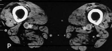 Computed tomography venograms in a 65-year-old man