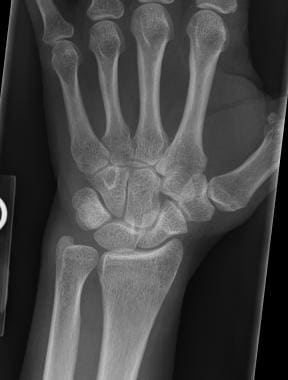 Posteroanterior radiograph of the wrist demonstrat