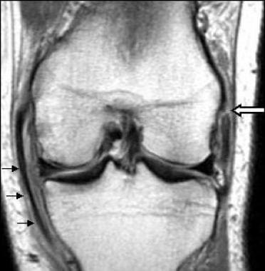 Acute tear of the proximal portion of the lateral