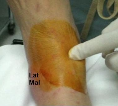 Identification of space between medial malleolus a