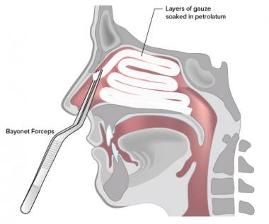 Anterior Nasal Packing for Epistaxis: Overview, Technique