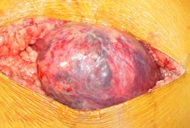 Intraoperative image demonstrating an hepatic aden