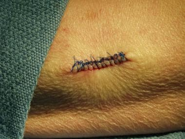 Line of interrupted sutures.