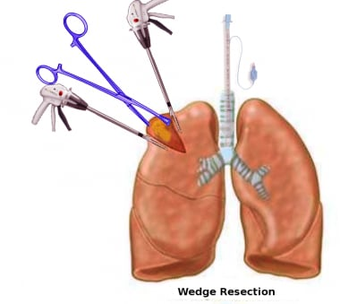 Pulmonary wedge resection.