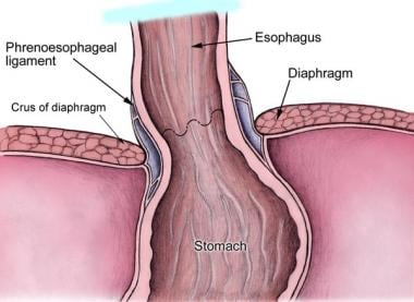 Anatomy of lower esophageal sphincter.