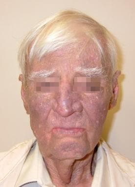 Amiodarone pigmentation.