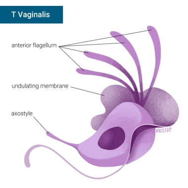 Trichomoniasis overview.