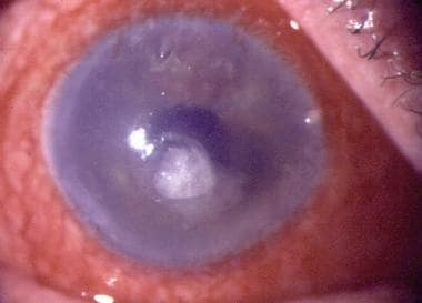 Secondary corneal ulcer in a case of acute hemorrh