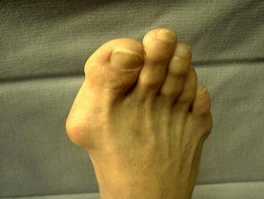 Nonweightbearing foot. Note medial prominence, con
