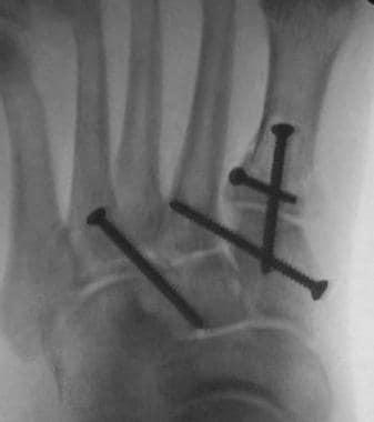 Postoperative anteroposterior radiograph demonstra