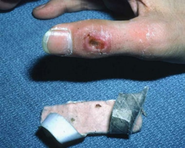 Pressure-sore formation can result from a splint t