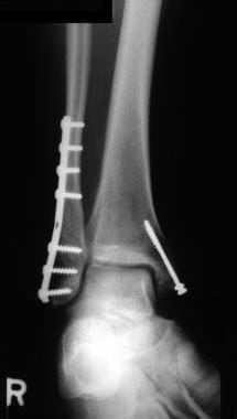 Ankle fracture radiograph after open reduction and