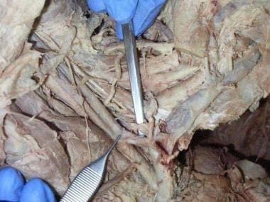 Thoracic duct inserting at the junction of interna