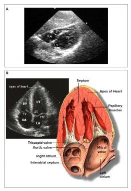 What is the prevalence of pericardial effusion in rheumatoid