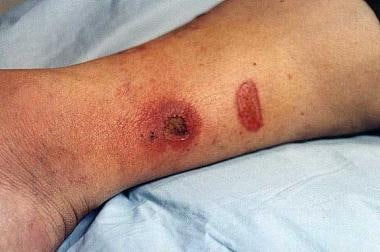 Burns complicated by cellulitis. The larger lesion