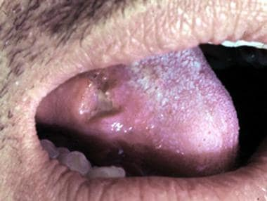 Ulcerated nodule on the tongue in a man with parac