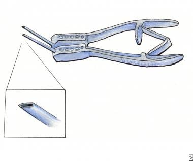 Rapitrach dilating forceps.