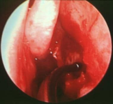 Endoscopic view of the left middle meatus, showing