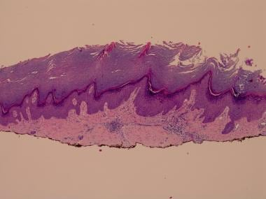 H and E biopsy of lichen simplex chronicus from fo