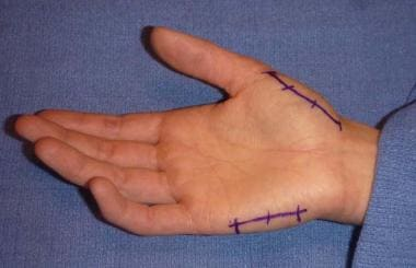 Locations for thenar incision over radial aspect o