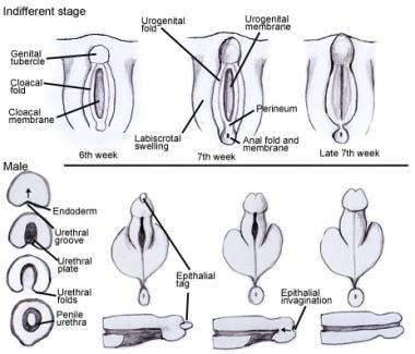 Embryologic development of pendulous urethra.