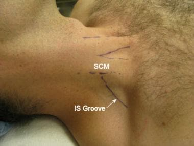 The sternocleidomastoid muscle (SCM) and interscal