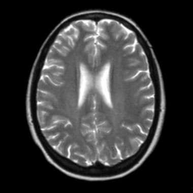 This T2-weighted axial MRI does not demonstrate we