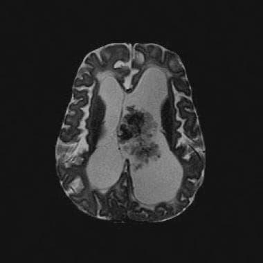choroid plexus papilloma medscape