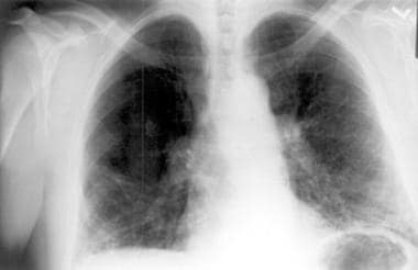 Chest radiograph in a patient with chronic hyperse