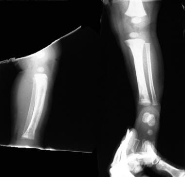 Streptococcal osteomyelitis in a 3-year-old patien