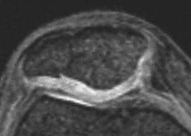 Magnetic resonance image of a healed patellar frac