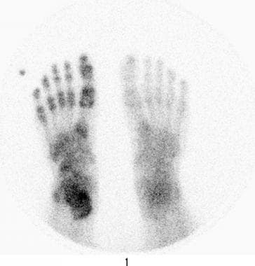 Reflex sympathetic dystrophy of the foot. Delayed