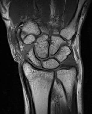 T1-weighted MRI in the same patient exhibits the h