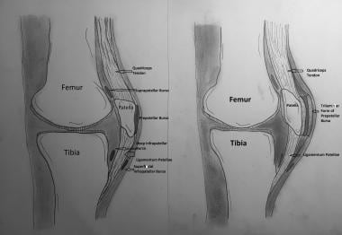Prepatellar bursa in normal (left) and inflamed (r