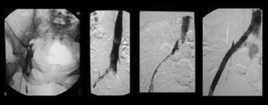 Sequential images demonstrate treatment of iliofem