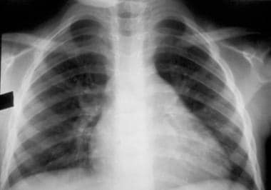 Chest radiograph showing cardiomegaly due to cardi