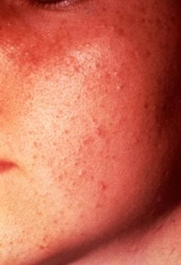 Acne, grade I; multiple open comedones.