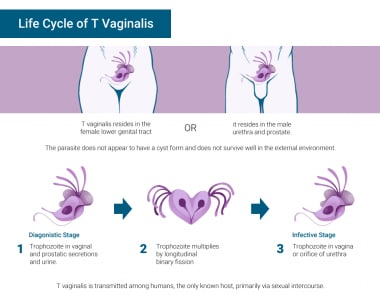 Trichomoniasis life cycle.
