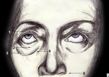 Topographic anatomy of the eyelid. 1.Superior tars