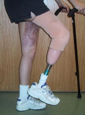 The good coverage allows for prosthesis fitting.