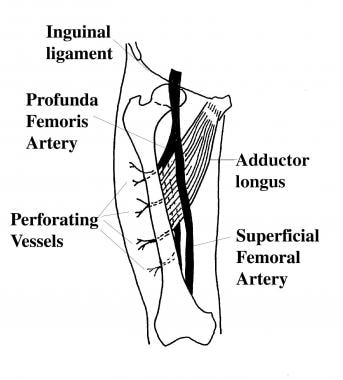 Relationship of the perforating vessels of the lat