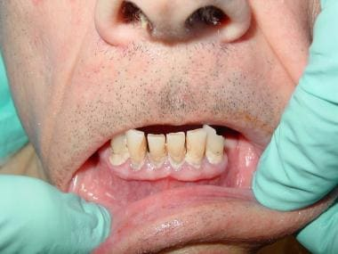A 72-year-old man with severe periodontal disease.