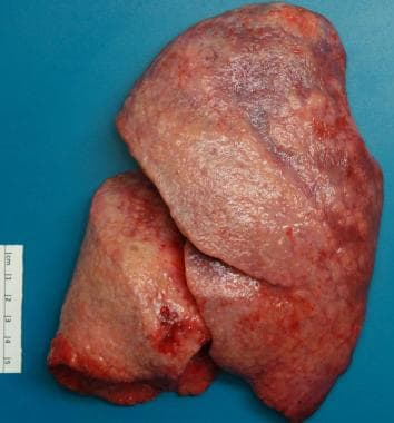 Explanted lung with a firm, fibrotic surface in a
