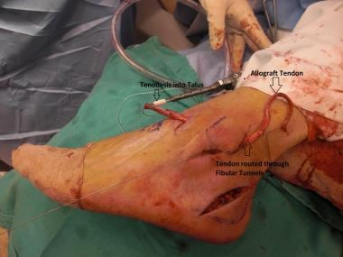 Minimally invasive allograft reconstruction of lat