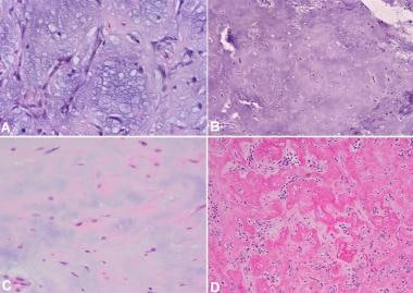 Different types of stroma in pleomorphic adenoma.