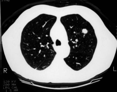 A 1.5-cm coin lesion in the left upper lobe in a p